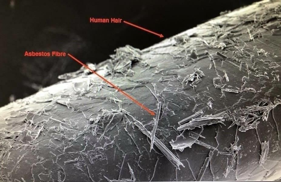 dangers of asbestos fibres