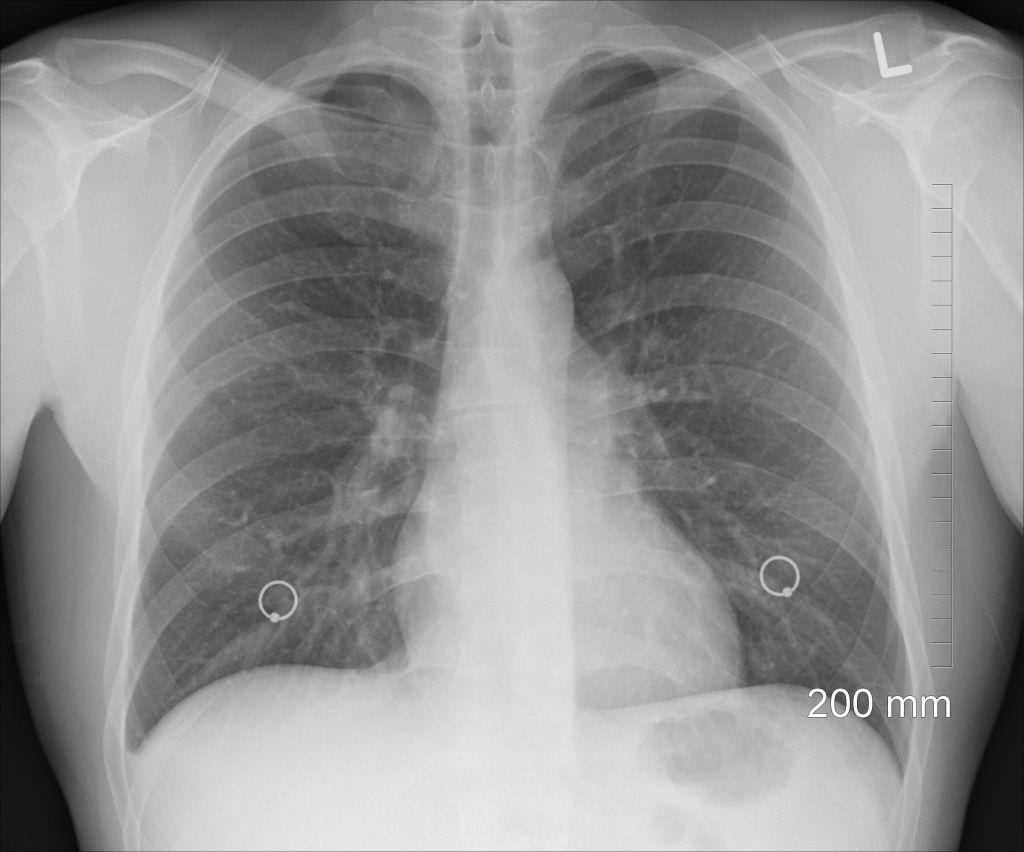 lung disease caused by asbestos